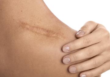 Chirurgiczne opracowanie blizn irozstępów