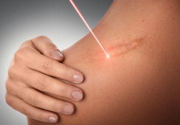 Opracowanie laserowe blizn