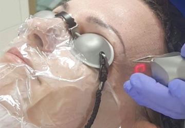 Laserowe odmładzanie okolicy oka